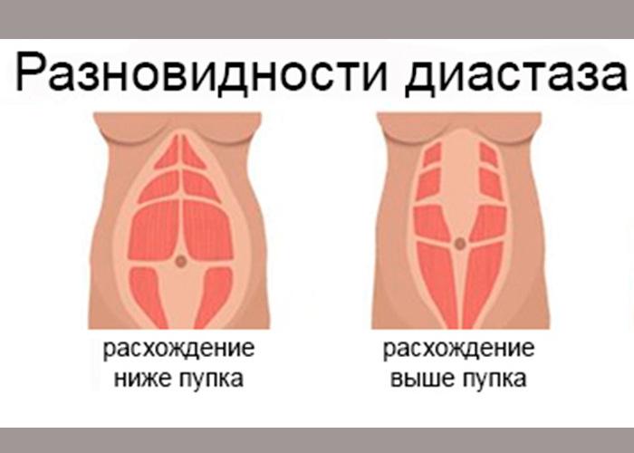 diastaz pryamoy mishtsi givota