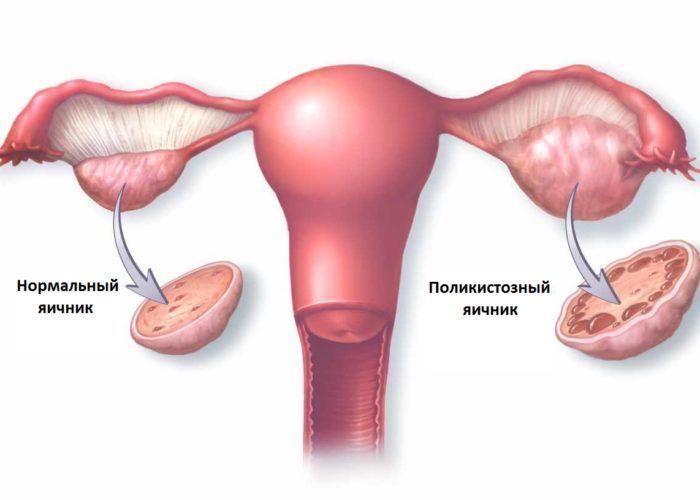 SPKYA-chto eto takoe v ginekologii
