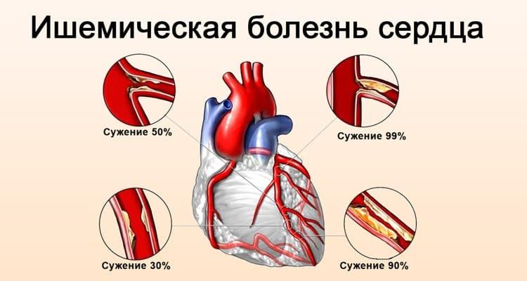 ishemicheskaya bolezn serdtsa